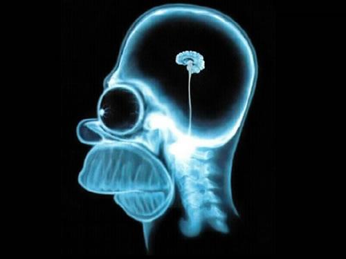 homer simpson quotes. homer-simpson-brain-mri